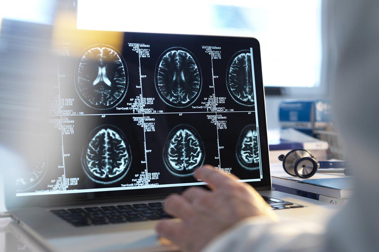 Thuật toán lượng tử của Microsoft tăng cường hình ảnh y tế